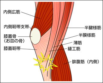 「鵞足炎」の画像検索結果